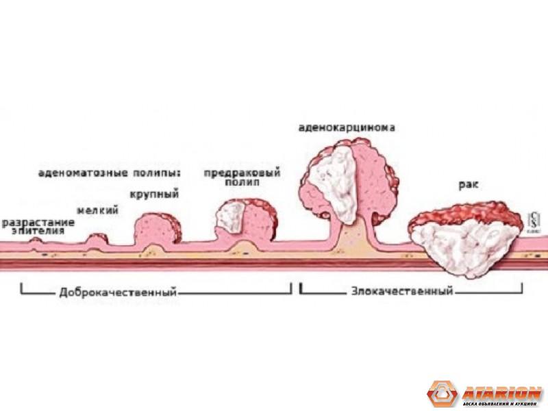 Как распознать рак горла на ранних стадиях